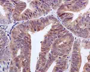 Immunohistochemistry (Formalin/PFA-fixed paraffin-embedded sections) - Anti-NUDCD2 antibody [EPR11558] - BSA and Azide free (ab249691)