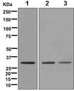 Western blot - Anti-ZNF664 antibody [EPR12530] - BSA and Azide free (ab249740)