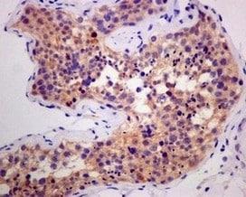Immunohistochemistry (Formalin/PFA-fixed paraffin-embedded sections) - Anti-Smac/Diablo antibody [EPR10934] - BSA and Azide free (ab249794)
