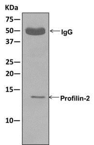 Immunoprecipitation - Anti-Profilin 2 antibody [EPR11030] - BSA and Azide free (ab249818)