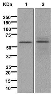 Western blot - Anti-LINGO4 antibody [EPR12600] - BSA and Azide free (ab249823)