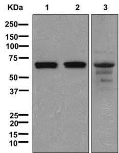 Western blot - Anti-RPE65 antibody [EPR7024(N)] - BSA and Azide free (ab249901)