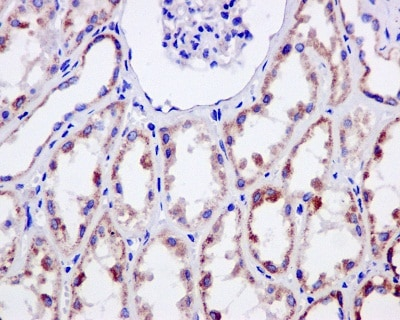 Immunohistochemistry (Formalin/PFA-fixed paraffin-embedded sections) - Anti-NDUFS3 antibody [EPR12782] - BSA and Azide free (ab249976)
