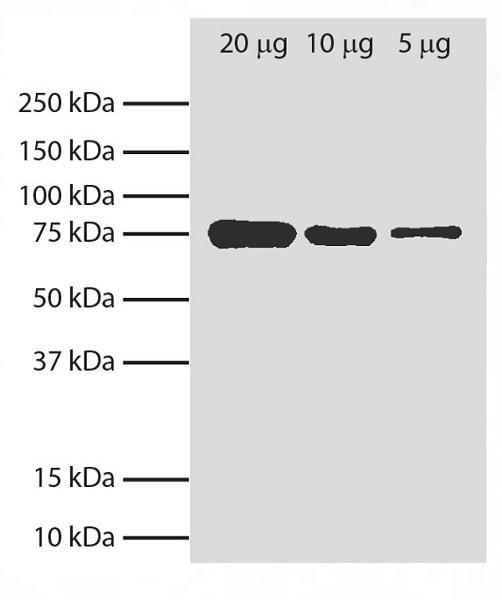 Western blot - Anti-GRP78 BiP antibody [76-E6] (ab25192)