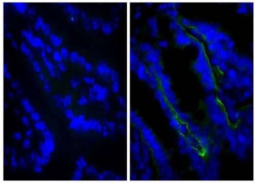 Immunohistochemistry (Frozen sections) - Anti-Integrin beta 4 antibody [346-11A] (ab25254)