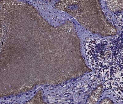 Immunohistochemistry (Formalin/PFA-fixed paraffin-embedded sections) - Anti-Ly6g antibody [RB6-8C5] (ab25377)