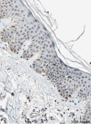 Immunohistochemistry (Formalin/PFA-fixed paraffin-embedded sections) - Anti-CENPB antibody (ab25734)