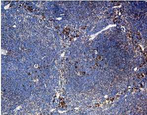 Immunohistochemistry (Formalin/PFA-fixed paraffin-embedded sections) - Anti-CCR3 antibody (ab25789)