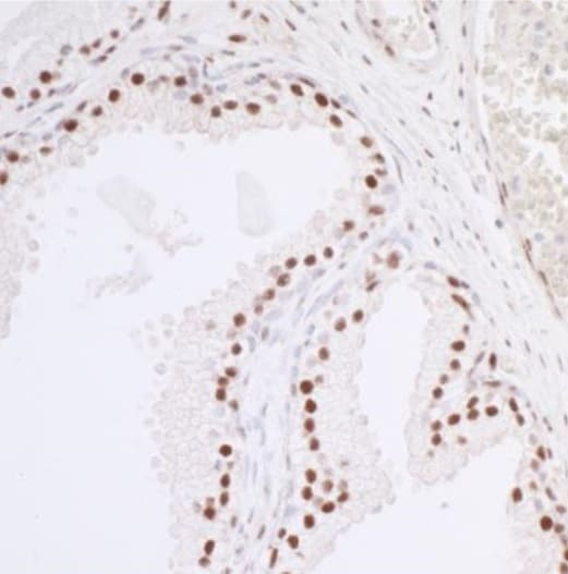 Immunohistochemistry (Formalin/PFA-fixed paraffin-embedded sections) - Anti-HCC1 antibody (ab25801)