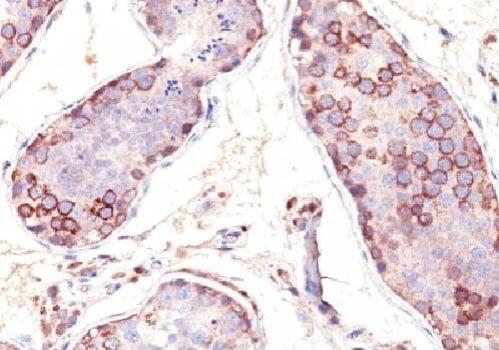 Immunohistochemistry (Formalin/PFA-fixed paraffin-embedded sections) - Anti-MAGEA1 antibody [SPM282] (ab25834)