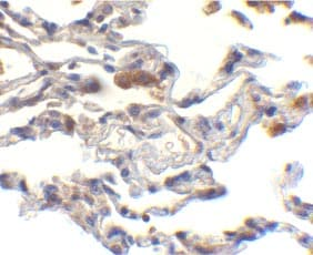 Immunohistochemistry (Formalin/PFA-fixed paraffin-embedded sections) - Anti-c-IAP1 and c-IAP2 antibody (ab25939)