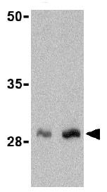 Western blot - Anti-GIP antibody (ab25973)