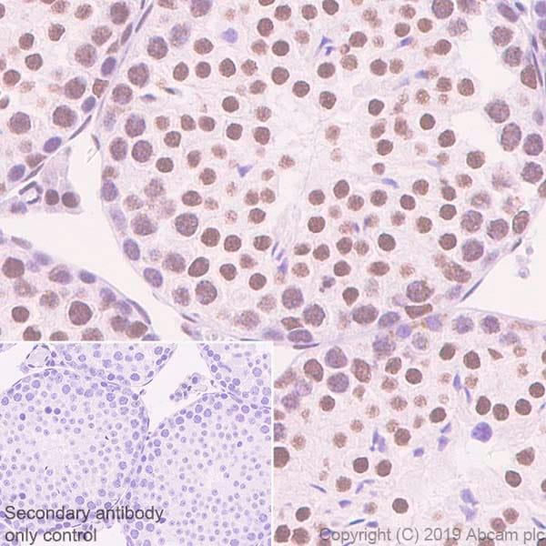 Immunohistochemistry (Formalin/PFA-fixed paraffin-embedded sections) - Anti-hnRNP M1-M4 antibody [EPR13509(B)] - BSA and Azide free (ab250027)