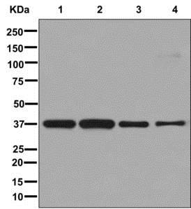 Western blot - Anti-MRGX antibody [EPR9775(2)] - BSA and Azide free (ab250034)