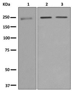 Western blot - Anti-DOCK8 antibody [EPR12511-56] - BSA and Azide free (ab250048)