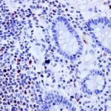 Immunohistochemistry (Formalin/PFA-fixed paraffin-embedded sections) - Anti-Oct-2 antibody [EPR12482-106] - BSA and Azide free (ab250055)