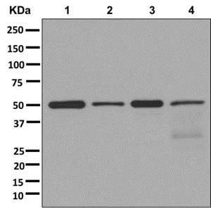 Western blot - Anti-ALG2 antibody [EPR12006(2)(B)] - BSA and Azide free (ab250071)