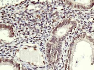 Immunohistochemistry (Formalin/PFA-fixed paraffin-embedded sections) - Anti-SMCHD1 antibody [EPR12340-29] - BSA and Azide free (ab250098)