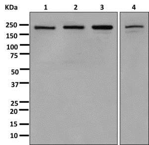 Western blot - Anti-SMCHD1 antibody [EPR12340-29] - BSA and Azide free (ab250098)