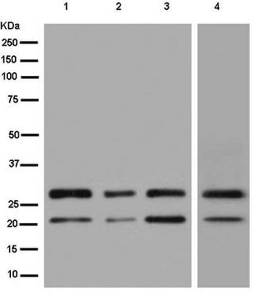Western blot - Anti-TMUB1 antibody [EPR14066] - BSA and Azide free (ab250234)