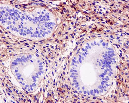 Immunohistochemistry (Formalin/PFA-fixed paraffin-embedded sections) - Anti-Collagen VI alpha 2 antibody [EPR7889(N)] - BSA and Azide free (ab250255)