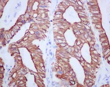 Immunohistochemistry (Formalin/PFA-fixed paraffin-embedded sections) - Anti-TMEM161A antibody [EPR14369] - BSA and Azide free (ab250284)