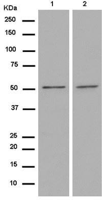 Western blot - Anti-TMEM161A antibody [EPR14369] - BSA and Azide free (ab250284)