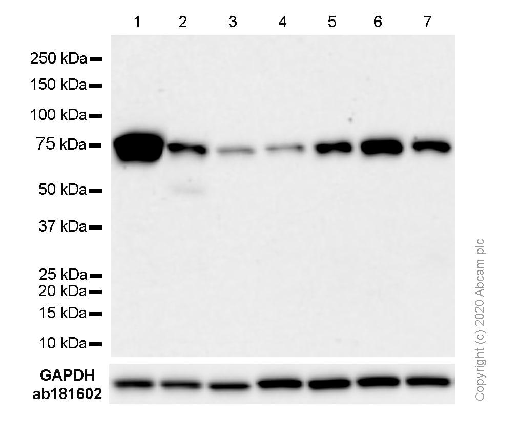 Western blot - Anti-TG6 antibody [EPR10308] - BSA and Azide free (ab250287)