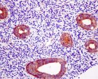 Immunohistochemistry (Formalin/PFA-fixed paraffin-embedded sections) - Anti-EIF2B5 antibody [EPR13533] - BSA and Azide free (ab250298)
