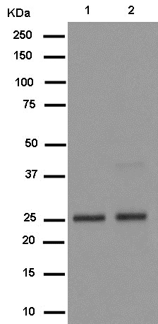 Western blot - Anti-NQO2 antibody [EPR13345] - BSA and Azide free (ab250309)