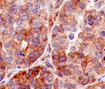 Immunohistochemistry (Formalin/PFA-fixed paraffin-embedded sections) - Anti-VAPA antibody [EPR13589(B)] - BSA and Azide free (ab250322)