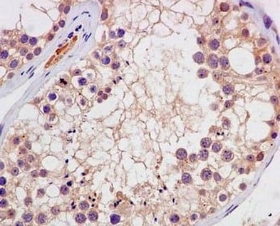 Immunohistochemistry (Formalin/PFA-fixed paraffin-embedded sections) - Anti-MMP22 antibody [EPR7769] - BSA and Azide free (ab250359)