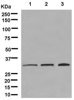 Western blot - Anti-Pyrophosphatase 1 antibody [EPR11282] - BSA and Azide free (ab250366)
