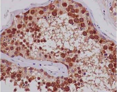 Immunohistochemistry (Formalin/PFA-fixed paraffin-embedded sections) - Anti-TTC4 antibody [EPR13381-76] - BSA and Azide free (ab250418)