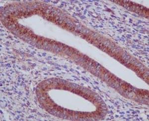 Immunohistochemistry (Formalin/PFA-fixed paraffin-embedded sections) - Anti-alpha COP I/COPA antibody [EPR14273(B)] - BSA and Azide free (ab250440)