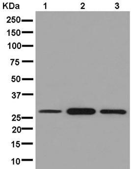 Western blot - Anti-ANP32C/PP32R1 antibody [EPR13354] - BSA and Azide free (ab250456)