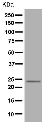Western blot - Anti-D4 GDI antibody [EPR14211(B)] - BSA and Azide free (ab250472)
