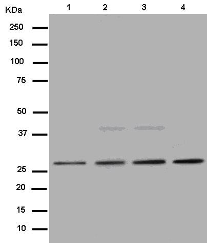 Western blot - Anti-PSMD9 antibody [EPR12947] - BSA and Azide free (ab250563)