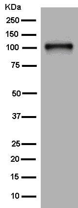 Western blot - Anti-CD62P antibody [EPR2146(2)] - BSA and Azide free (ab250579)
