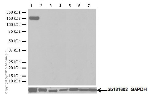 Western blot - Anti-Phospholipase C beta 1/PLCB1 antibody [EPR18895] - BSA and Azide free (ab250611)