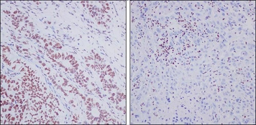 Immunohistochemistry (Formalin/PFA-fixed paraffin-embedded sections) - Anti-ARID1A antibody [EPR13501-73] - BSA and Azide free (ab250617)