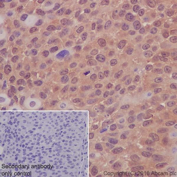 Immunohistochemistry (Formalin/PFA-fixed paraffin-embedded sections) - Anti-AKT1 + AKT2 antibody [EPR17062] - BSA and Azide free (ab250634)