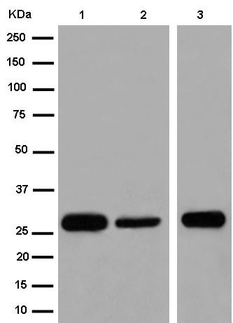 Western blot - Anti-TEMT antibody [EPR13240-105] - BSA and Azide free (ab250773)