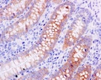 Immunohistochemistry (Formalin/PFA-fixed paraffin-embedded sections) - Anti-CES2 antibody [EPR14856] - BSA and Azide free (ab250793)