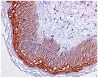 Immunohistochemistry (Formalin/PFA-fixed paraffin-embedded sections) - Anti-EVPL antibody [EPR14688] - BSA and Azide free (ab250816)