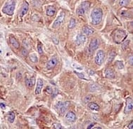 Immunohistochemistry (Formalin/PFA-fixed paraffin-embedded sections) - Anti-ABCE1 antibody [EPR15373(B)] - BSA and Azide free (ab250835)