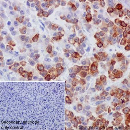 Immunohistochemistry (Formalin/PFA-fixed paraffin-embedded sections) - Anti-Cyclin B2/CCNB2 antibody [R17985] - BSA and Azide free (ab250841)
