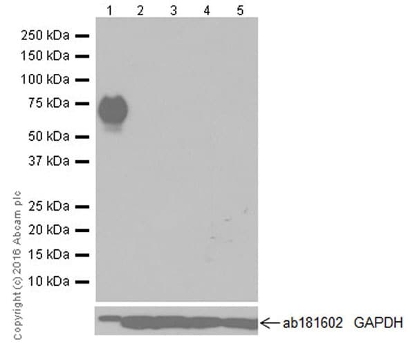 Western blot - Anti-Cytokeratin 1 antibody [EPR17744] - BSA and Azide free (ab250844)