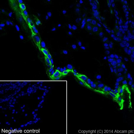Immunohistochemistry (Frozen sections) - Anti-Cytokeratin 1 antibody [EPR17870] - BSA and Azide free (ab250845)