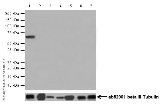 Western blot - Anti-Cytokeratin 1 antibody [EPR17870] - BSA and Azide free (ab250845)